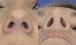 rhinoplasty-case-1-pic-2