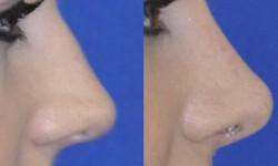 rhinoplasty-case-1-pic-3