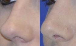 rhinoplasty-case-1-pic-5