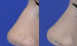 rhinoplasty-case-1-pic-6