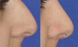 rhinoplasty-case-2-pic-3