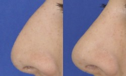 rhinoplasty-case-2-pic-6