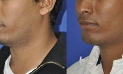 chin-augmentation-neck-liposuction-2