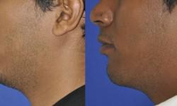 chin-augmentation-neck-liposuction