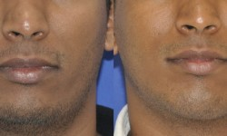 chin-augmentation-neck-liposuction-3