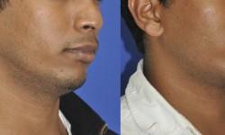 chin-augmentation-neck-liposuction-4