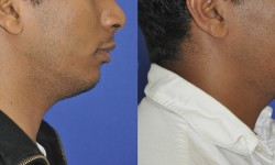 chin-augmentation-neck-liposuction-5
