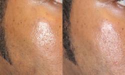 dermatosis-papulosa-nigra
