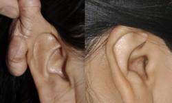 ear-keloid-surgery-1
