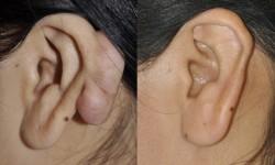 ear-keloid-surgery-2