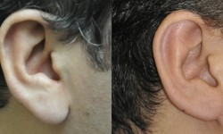earlobe-reduction-1