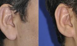 earlobe-reduction-2