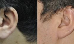 earlobe-reduction-3