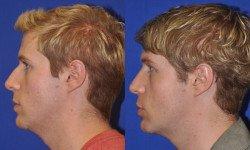 endonasal-rhinoplasty