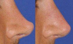 gallery-nonsurgical-rhinoplasty