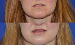 lip-augmentation2