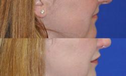 lip-augmentation4