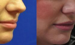 mehta-lip-augmentation-2