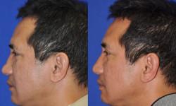 ns-rhinoplasty-01