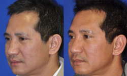 ns-rhinoplasty-02
