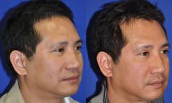 ns-rhinoplasty-04