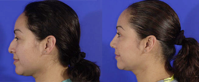 Atherton Plastic Surgery SF Bay Area Cosmetic Surgeon