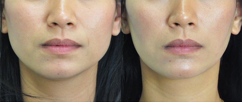 Botox For Jawline Reduction Mehta Plastic Surgery