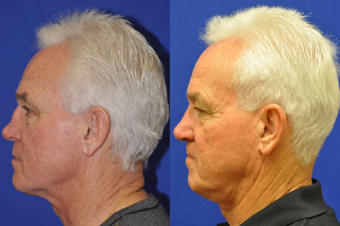 Revision Rhinoplasty With Rib Cartilage Reconstruction